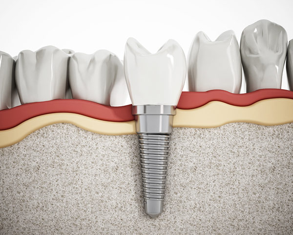 Benefits-of-Dental-Implants